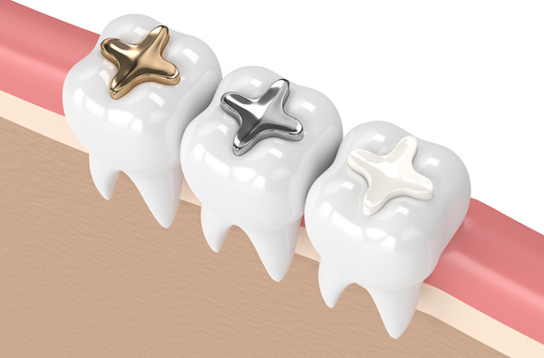 Rendering of teeth with 3 filling materials from Tammy D. Lee, DDS in Greensboro, NC
